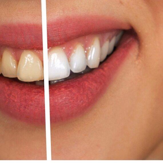 blanqueamiento dental leganes